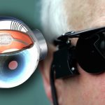 Bionic Eye Offers Hope To Blind Patients And Britain's NHS To Fund Surgery For 10 Patients During 2017